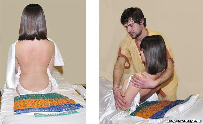 Что такое задняя диффузная грыжа шейного отдела